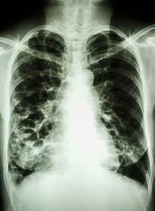 Copd And Bronchiectasis  Similarities And Differences