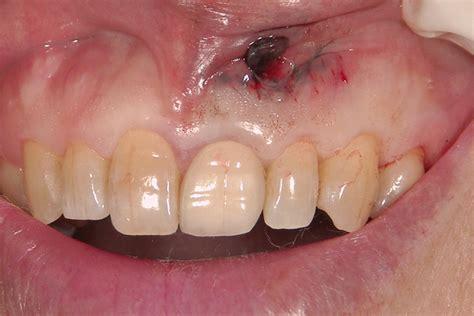前歯 差し歯 できない