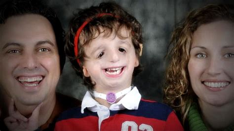 milly shapiro genetics boy born with genetic disorder inspires others with