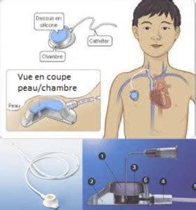 cath ter chambre implantable la vie par un fil la nutrition parentérale