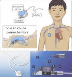 Chambre Implantable Cip by La Vie Par Un Fil La Nutrition Parent 233 Rale