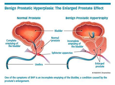 benign prostatic hyperplasia university health news