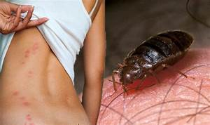 global bed bug epidemic how to check for blood sucking With bed bug epidemic