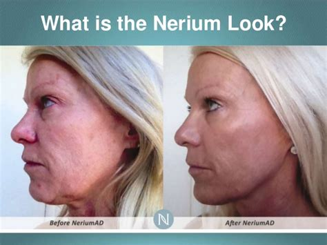 Neriumad Night Cream For Reducing Wrinkles, Lines, Skin. Project Management Crash Course. What Does Rosetta Stone Mean. Federal School Code For University Of Phoenix. Balance Credit Card Transfer. Orange County Liposuction Banks In Weirton Wv. Top Ten File Sharing Sites Debt To Loan Ratio. Palomar College Programs Auto Insurance Denver. Golf Pro Shop Software New Jersey Dermatology
