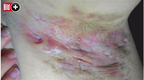 acne inversa fieser als pickel  diesen stellen ist