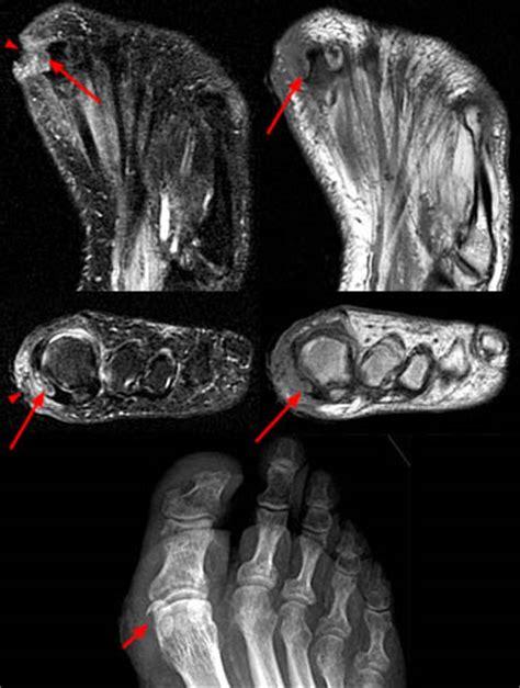 sesamoid bones normal  abnormal radsource
