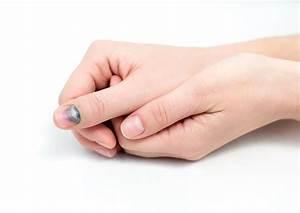 Как удалить бородавку на подушечке пальца