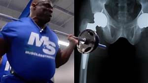 What is Ronnie Coleman doing to his body? – Built Report