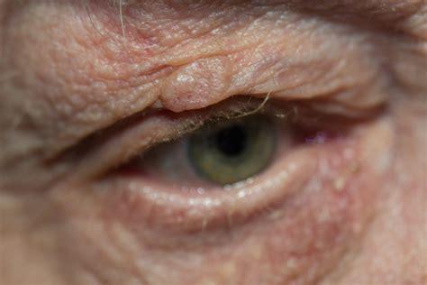 Harris Eyelid & Facial Plastic Surgery