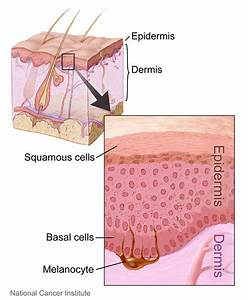 What Are The Beginning Signs Of Skin Cancer