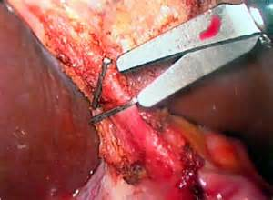Surgical Clips After Gallbladder Surgery