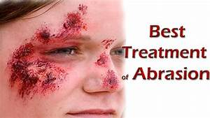 Abrasion | Treatment of Abrasion | Best Home Remedies For ...