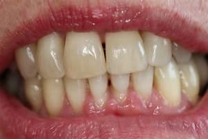 Dents Qui Se Déchaussent Photos : soins des gencives centre dentaire rive sud ~ Medecine-chirurgie-esthetiques.com Avis de Voitures