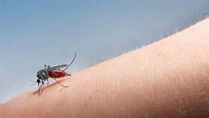 Hausmittel Gegen Mückenstiche : hausmittel gegen m ckenstiche gesuendernet ratgeber f r gesundheit medizin und krankheiten ~ Watch28wear.com Haus und Dekorationen
