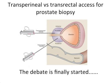 Transperineal Stereotactic Template Guided Saturation Prostate Biopsy by Nice Template Prostate Biopsy Pictures Themes