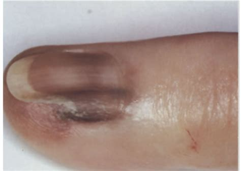 nail bed melanoma subungual melanoma nail bed