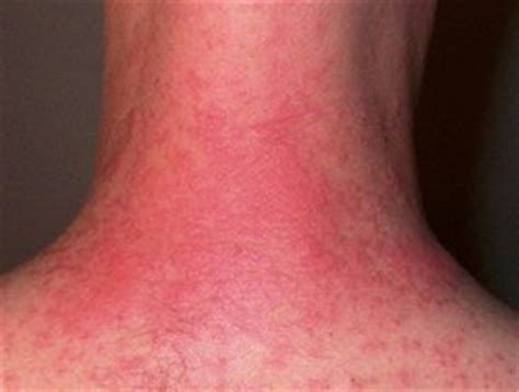 burning itching skin without rash - OnlyOneSearch Results
