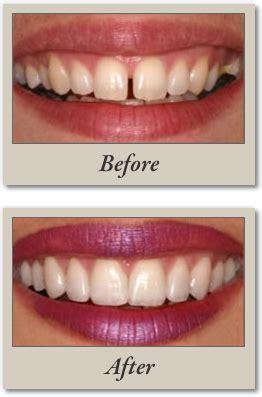 smile by design cosmetic veneers