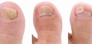 Отзывы о лечении грибка ногтей флуконазолом отзывы