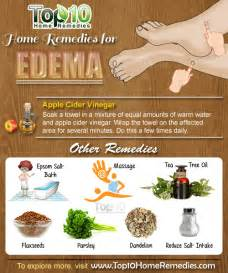 top 10 home remedies for home remedies for edema top 10 home remedies