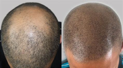 Scalp Micropigmentation with A Hair Transplant