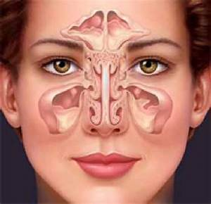 Clean The Sinuses In A Natural Way