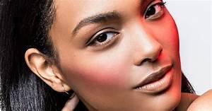 Dry Vs Dehydrated Skin Remedies  Treatment
