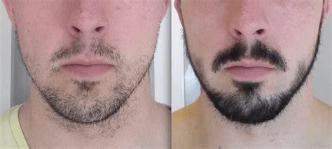 Barba Falhada – 5 Soluções Eficientes, Dicas & Como Disfarçar!