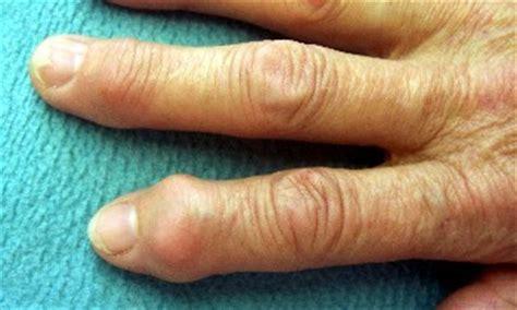 artrosis informacion general