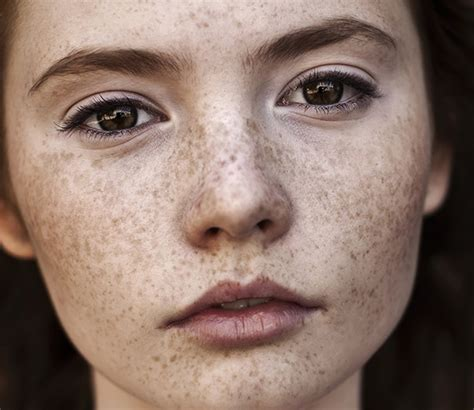 red hair pale skin freckles