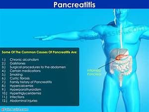 What is Pancreatitis|Treatment|Symptoms|Causes|Diet|Home ...