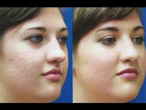 remove dark spots  pimples naturally fast
