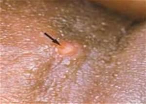 Лечение папилломы вируса изопринозин