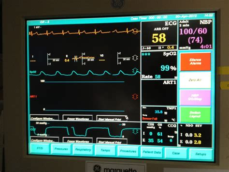 Effects of Anesthesia on the Heart | HealDove