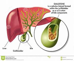 Gallstones Stock Vector  Illustration Of Abdominal  Stones
