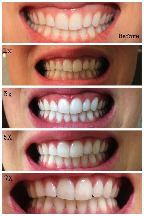 Diy Bleaching Teeth   Diy (Do It Your Self)