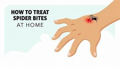Spider Bites Treat Bite Treatment