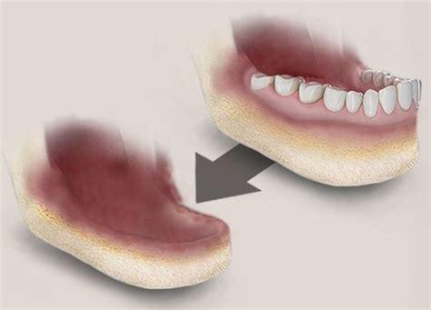 dentures  jaw bone loss tibor dental