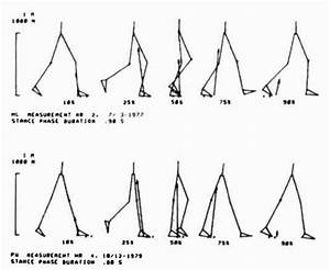 Gait-pattern-with-2-canes Jpg Images