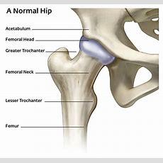 Hips  Dr Bryan Bomberg