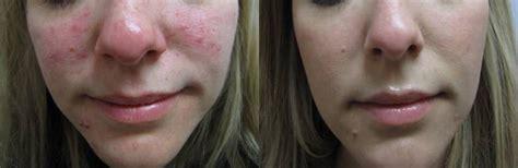 Gallery - Kingston Laser Cosmetic Clinic - Kingston, ON