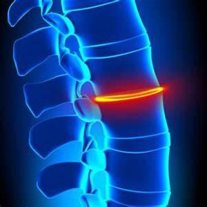 Народные средства для лечения остеохондроза шейного отдела