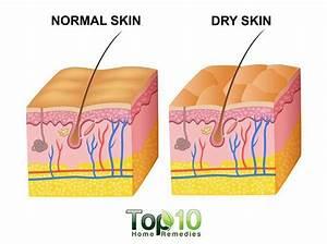 Dog Body Diagram Dermatology