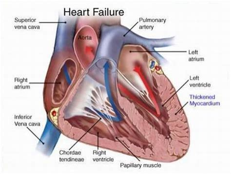 Heart Failure HF Etiology pathophysiology symptoms signs diagnosis amp prognosis from the Merck Manuals Medical Professional Version