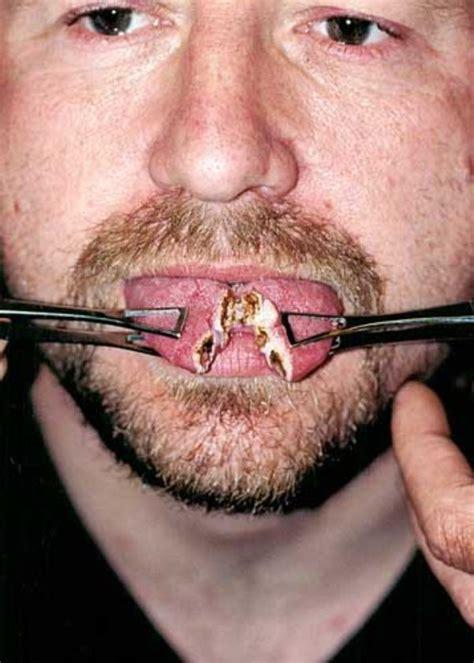 tongue splitting   klykercom