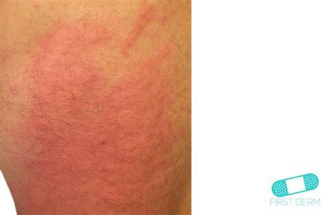 dermographism dermatographic urticaria  dermatology