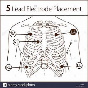 Holter Monitor 5 Lead Placement Diagram