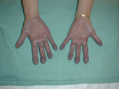 Medical Pictures Info – Cyanosis