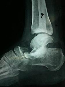 Lateral subtalar dislocation: A case report   The Foot and ...