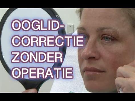 correctie oogleden